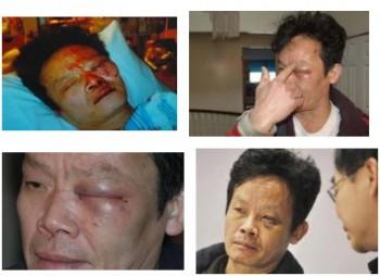 пострадавший от полиции Ванкувера